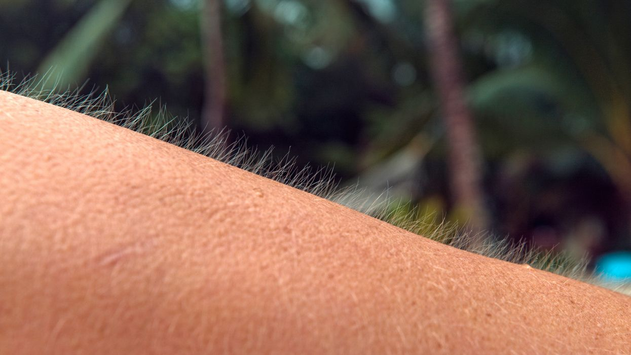 Study finds the real reason you get goosebumps