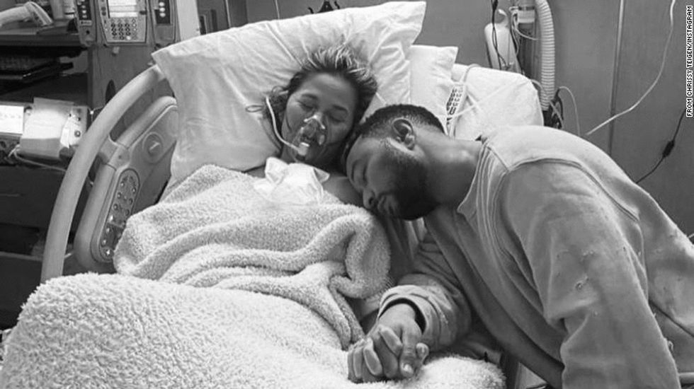 Chrissy Teigen's Miscarriage Reminds Us That Everyone Grieves Differently, And That's OK