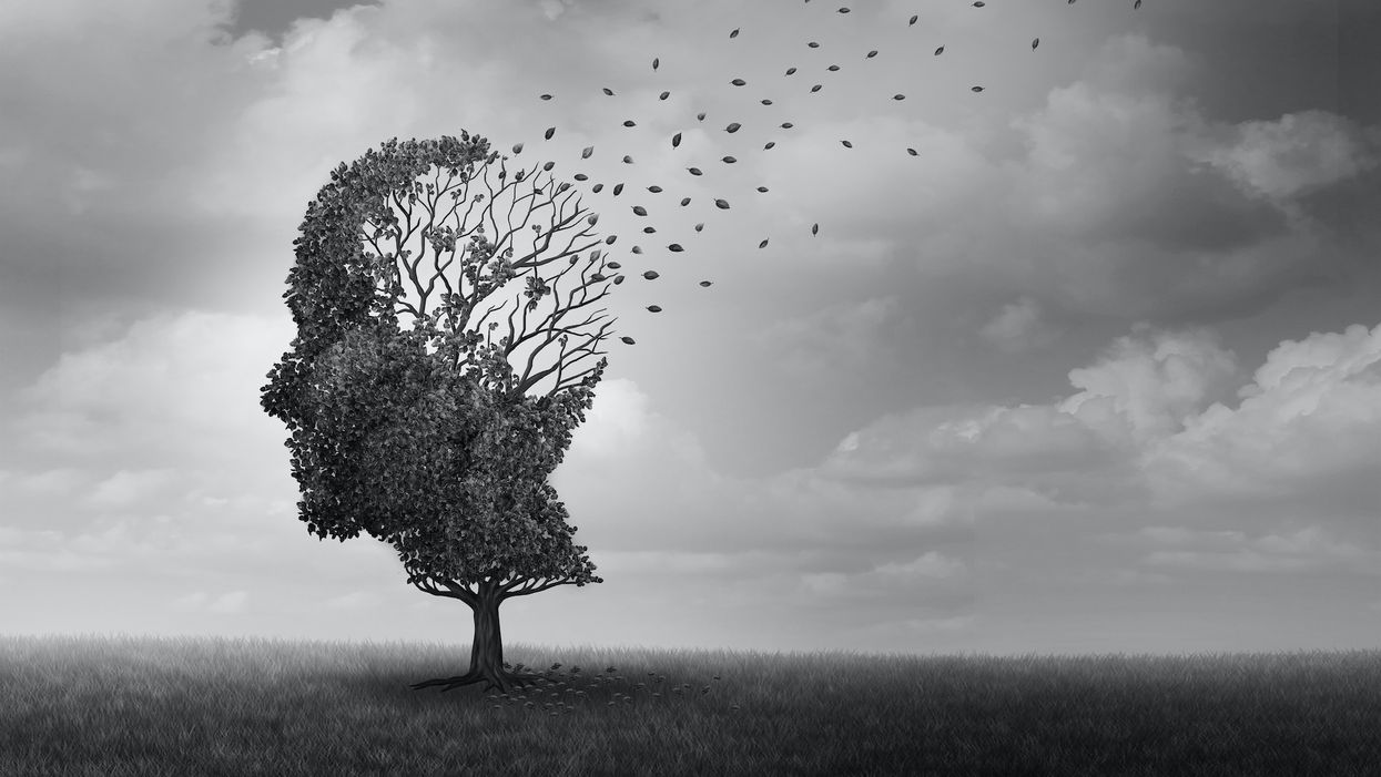 Only 35 percent of Americans know the symptoms of Alzheimer's disease
