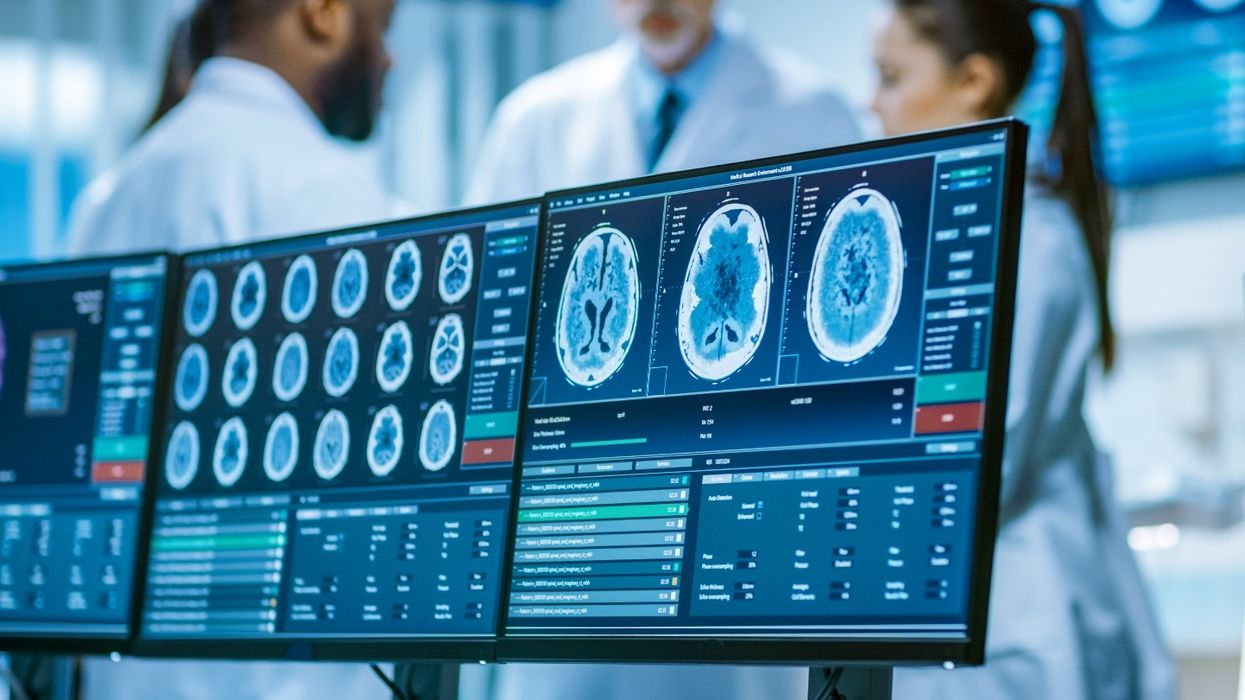 New brain scan analysis tool can detect early signs of dementia