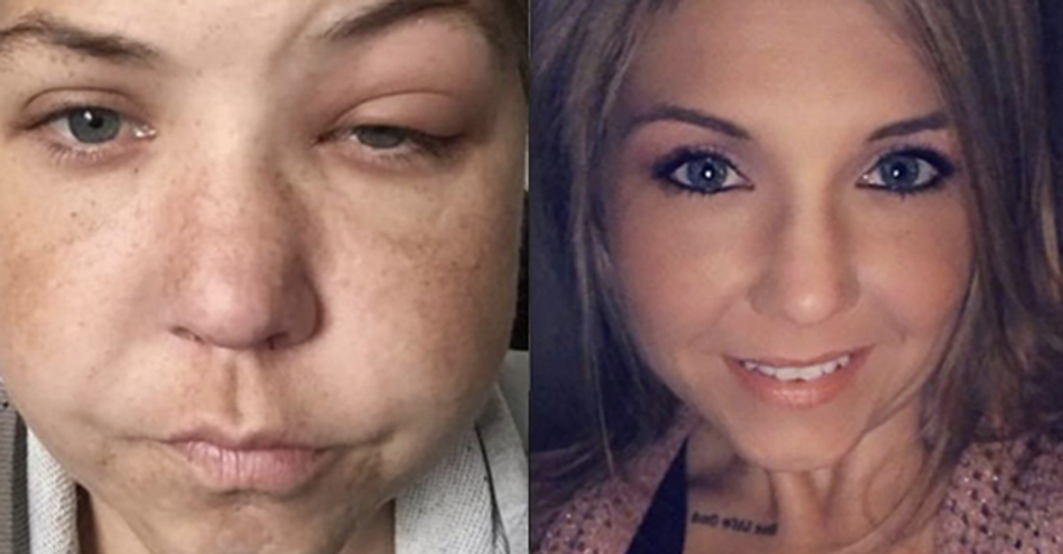 Addicts Share Their Pics Before and After Getting Sober