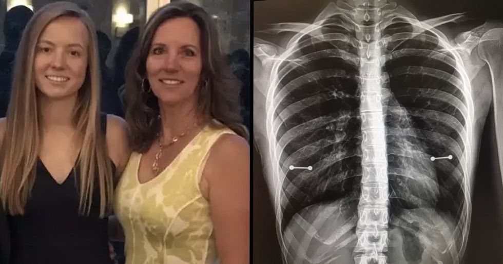 Mom Accidentally Discovers Her Daughter Has Nipple Piercings After Seeing Her X-Rays