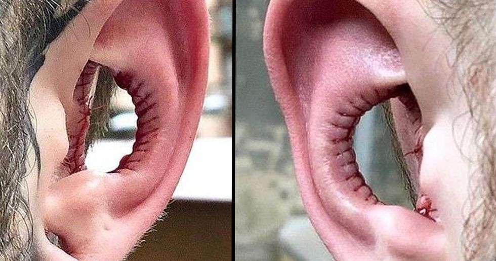 Man Gets Inside of Ear Removed in Bizarre New Body Modification Trend