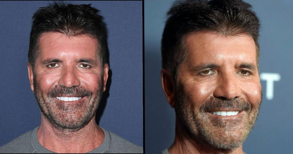 Simon Cowell Reveals Truth Behind His 'New Face'