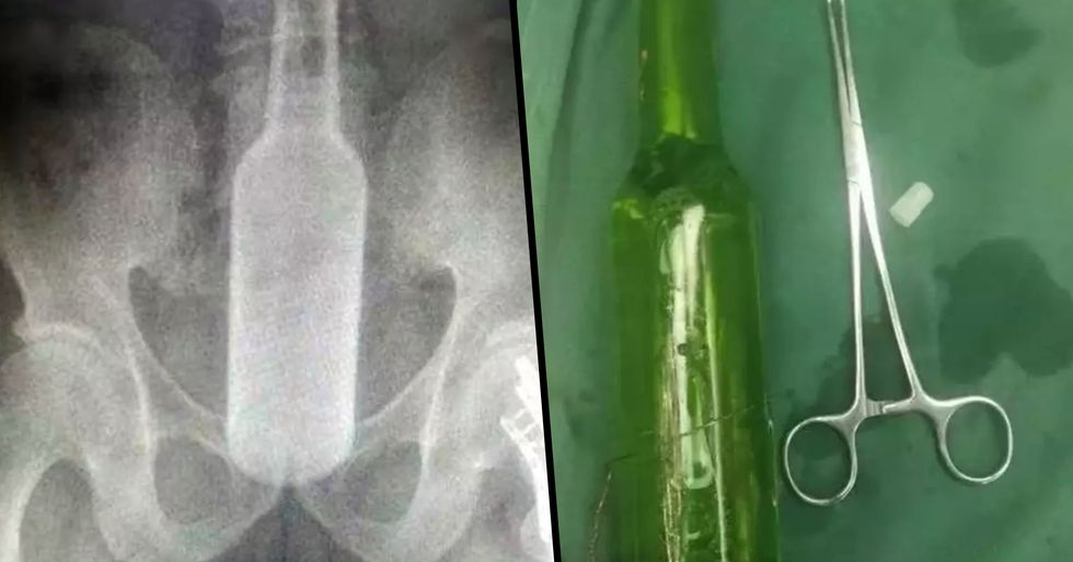 Man Has Seven Inch Bottle Removed From His Behind After Using It to 'Scratch'