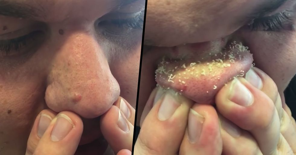 Guy's Blackhead Removal Technique Is Freaking Everyone Out