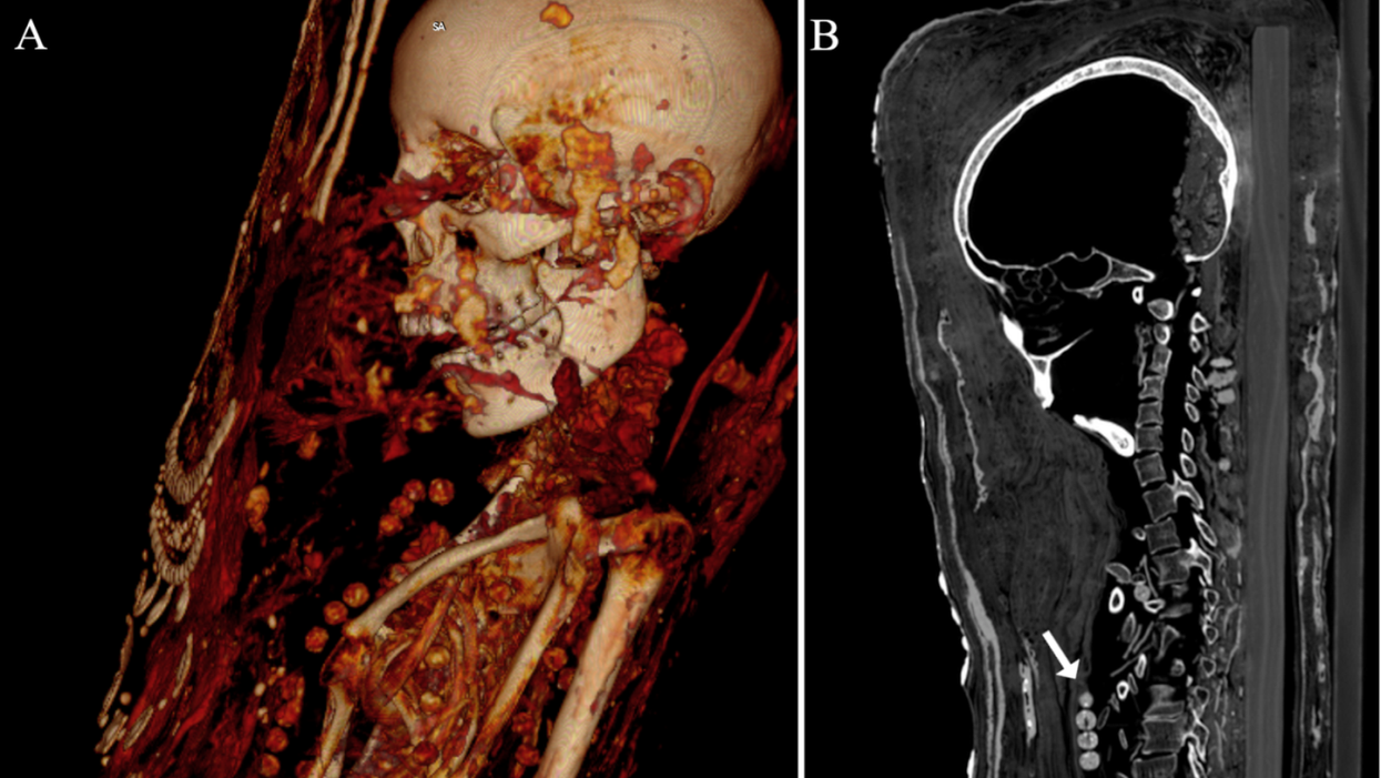 Researchers use CT scans to digitally peek at ancient Egyptian mummies