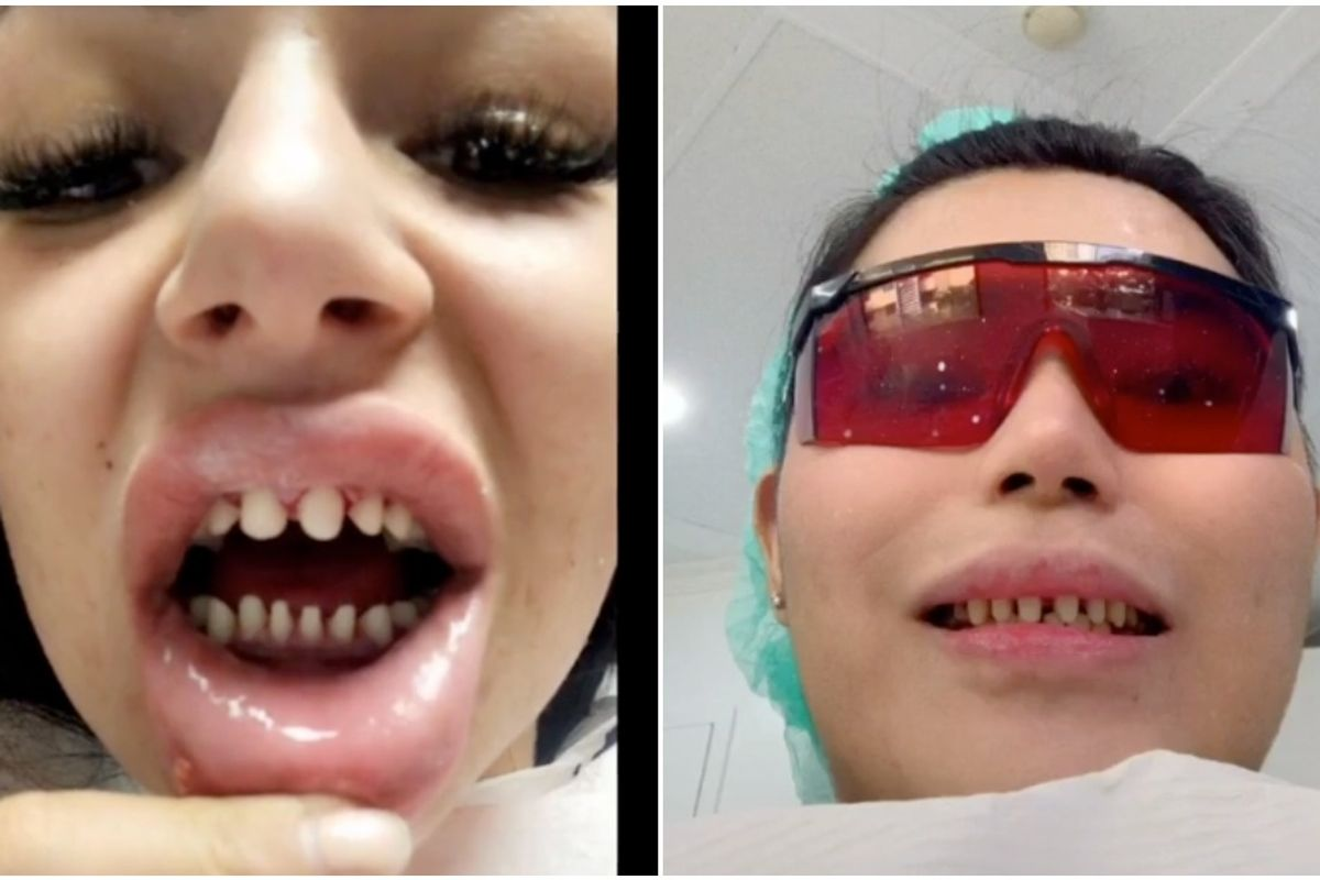 TikTok Dentists Are Warning Against the Viral 'Veneers Check' Trend