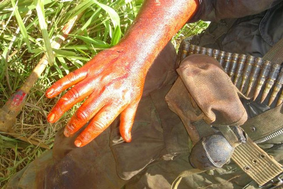 Jack Black's Bloody Arm On the Set of Ben Stiller's New Movie Tropic Thunder (Not Co-Starring Owen Wilson)