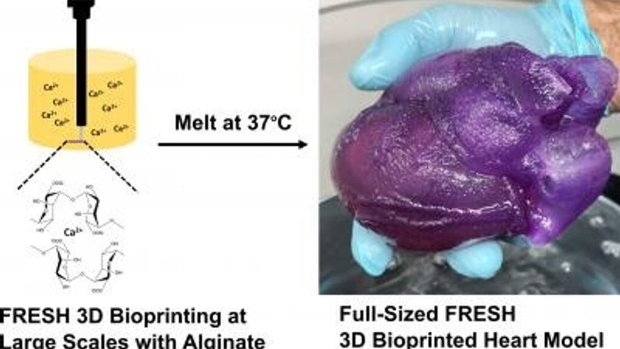 3D bioprinted heart model