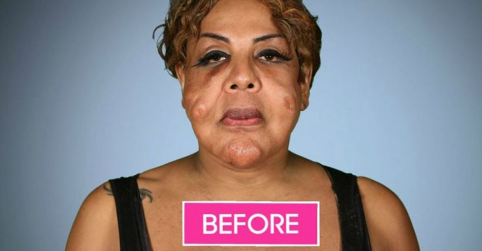 This Woman Had Her Face Injected With Cement...and She Looks AMAZING After the Work Done To Fix It
