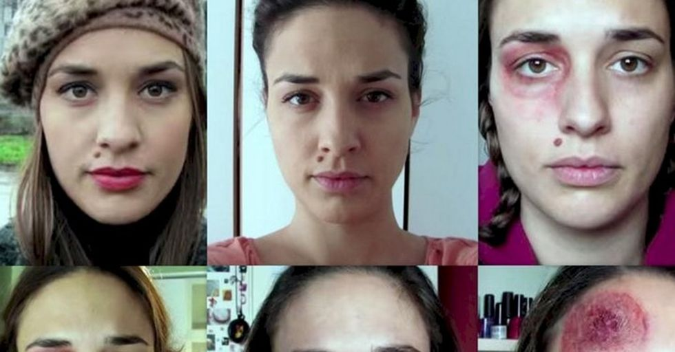 A Brave Woman Took a Picture Every Day To Show the Horrifying Truth About Domestic Abuse