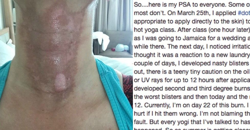 If You've Ever Used Essential Oils, You Need To Read This Woman's Graphic Warning