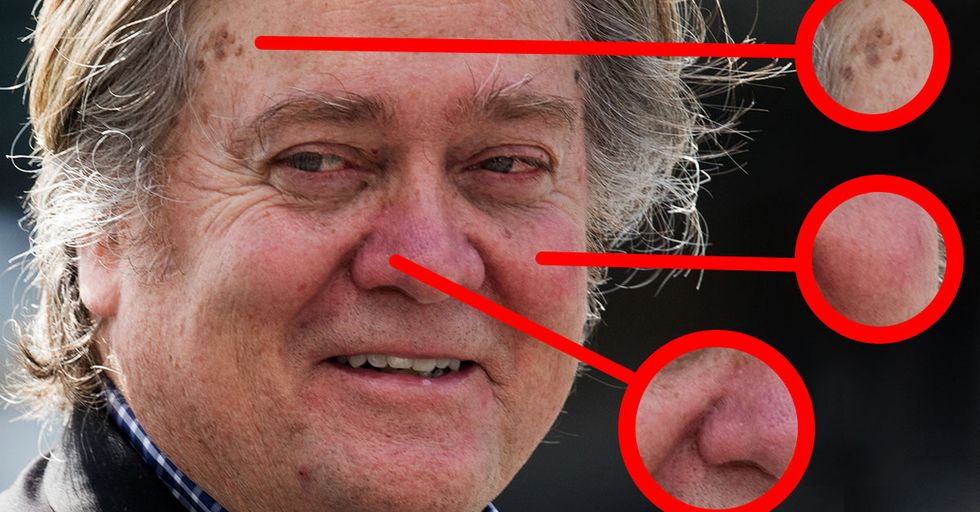 A Dermatologist Has Given a Detailed Breakdown of Steve Bannon's Face