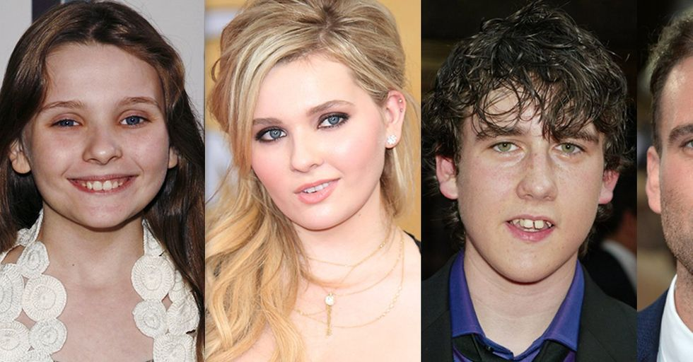 10 Ugly Duckling Child Stars Who Surprised Everyone by Growing up to Be Hot