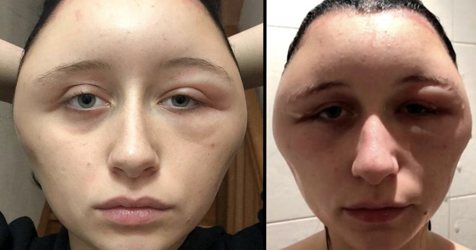 Woman's Head Doubles in Size After Allergic Reaction to Hair Dye