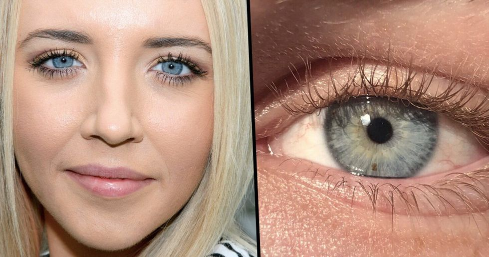 All People With Blue Eyes Have This One Thing in Common