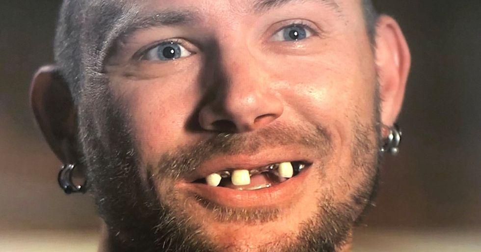 'Tiger King' John Finlay Has a New Set of Teeth