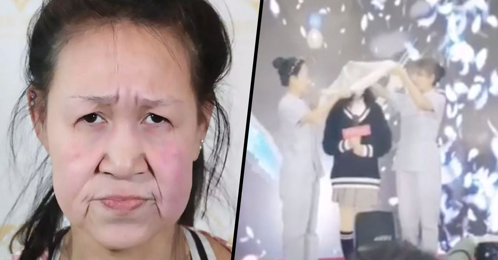 15-Year-Old Girl With 'the Face of a 60 Year Old' Given a 'New Face' to Look Young