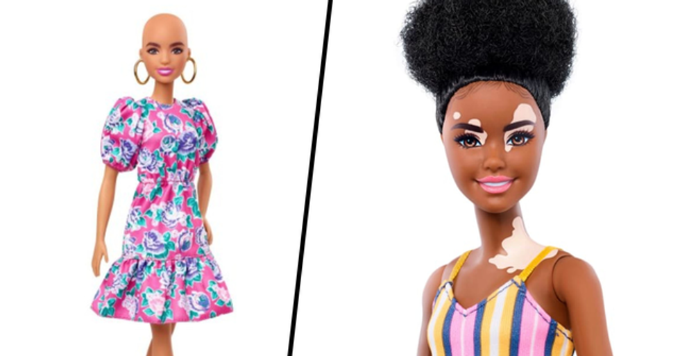 New Barbie Dolls Feature Vitiligo and Hairless Models in Bid to Boost Diversity