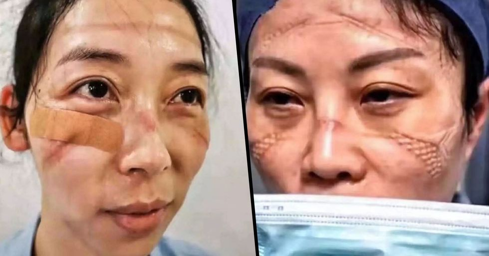 Medics Share Shocking Photos of the Effects That Treating Coronavirus Has Had on Their Faces
