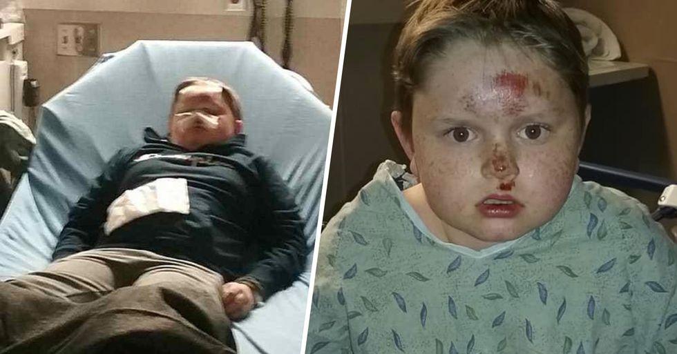 Mom Warns Against Tiktok 'Skull Breaker' Challenge That Hospitalized Her Son