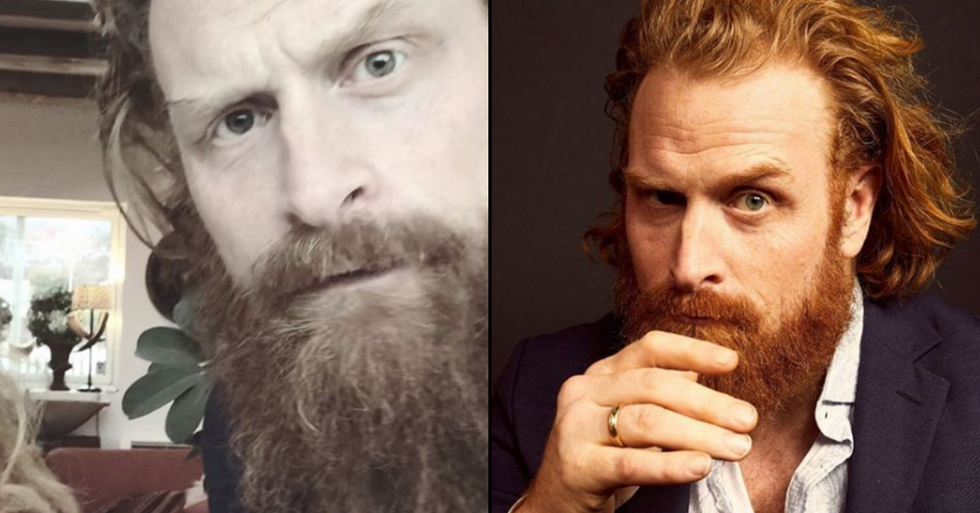 'Game of Thrones' Star Kristofer Hivju Confirms Coronavirus Diagnosis