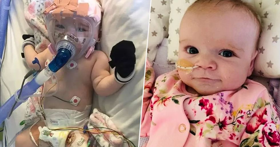 Six Month Old Baby With Heart and Lung Problems Beats Coronavirus