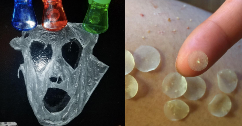 31 Popular Products on Amazon With Results That'll Make Your Skin Crawl