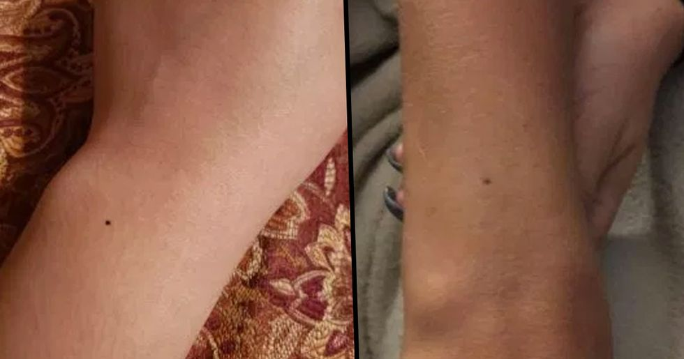 Women Are Sharing Photos of the Identical Freckle They Have on the Wrist