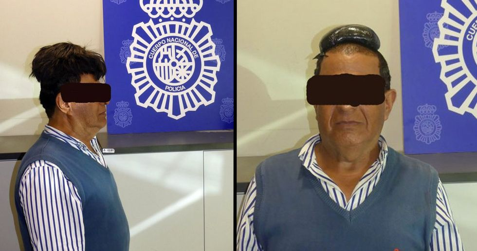 Man Tries to Smuggle Half a Kilo of Cocaine Under His Wig