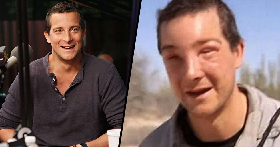 Bear Grylls Suffered Life-Threatening Allergic Reaction to Bee Sting on New Show