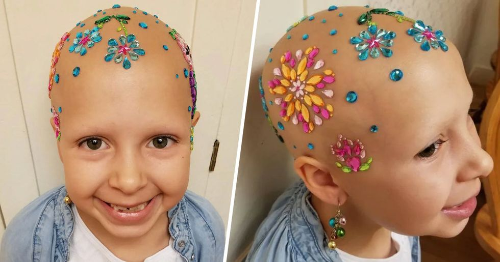 Little Girl With Alopecia Rocks School's Crazy Hair Day