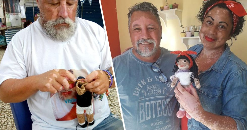Grandfather Knits Dolls with Vitiligo for Children with the Same Condition