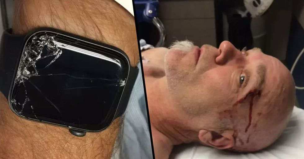 Man Left Alone and Unconcious in Woods until Apple Watch Saved His Life