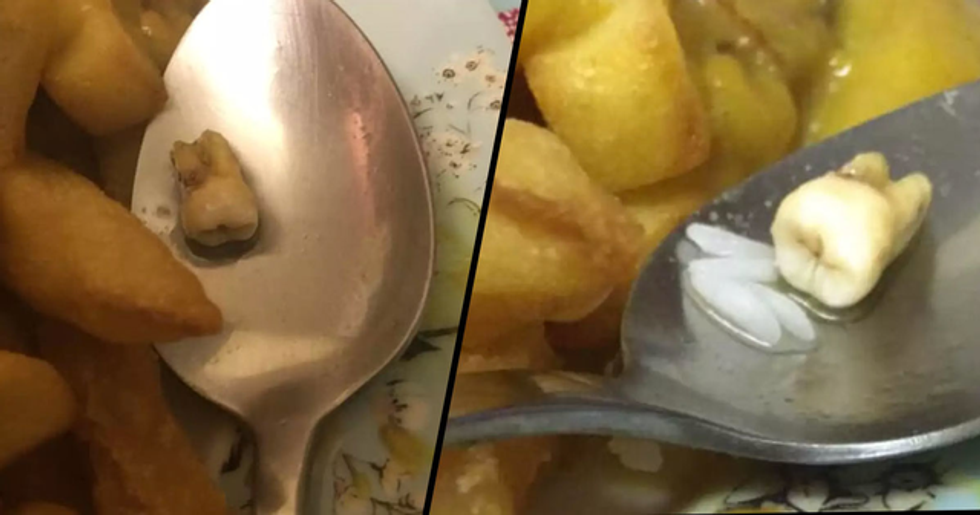 Couple Claim They Found Human 'Tooth' in Their Chinese Takeout