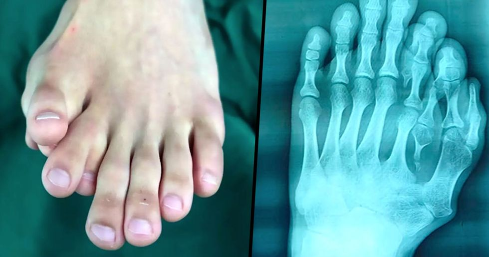 Man with Nine Toes on One Foot Undergoes Surgery to Have Them Removed