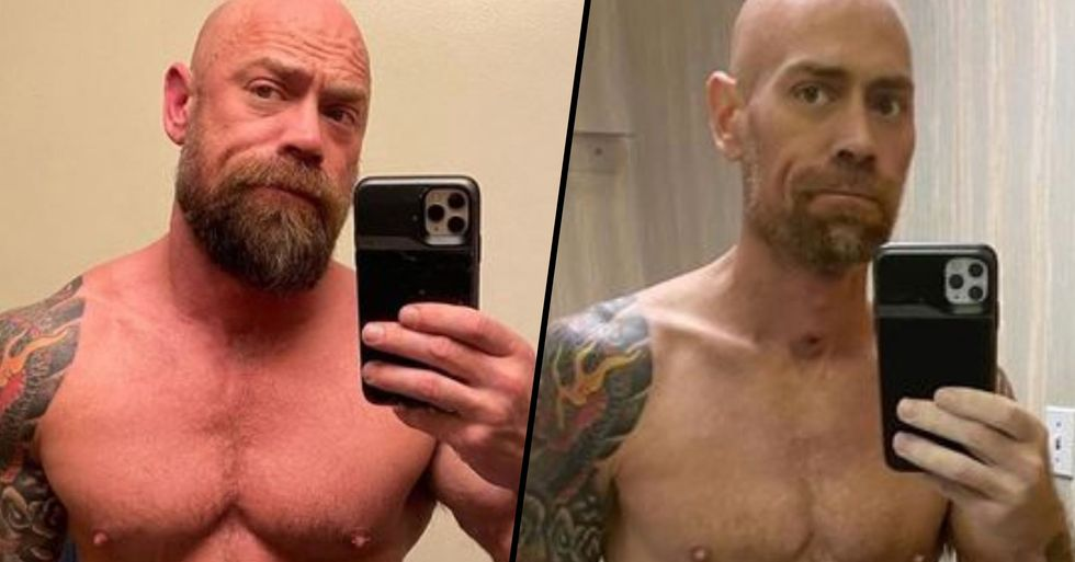 Man Shares Horrifying Before and After Photos That Show Impact of Coronavirus on the Body