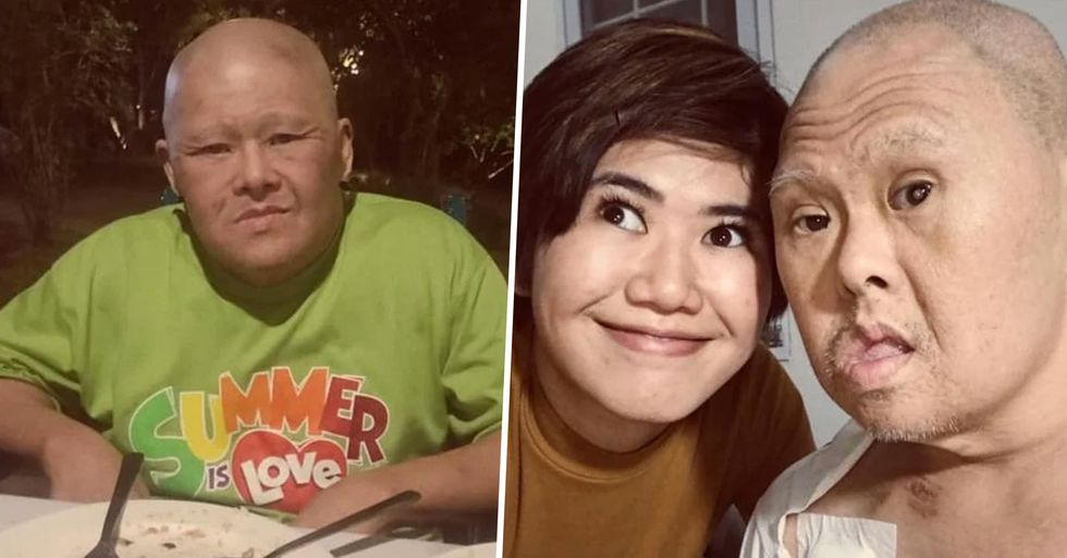 Girl Wishes a Happy Birthday to Her Dad With Down's Syndrome and Makes Everyone Admire Him