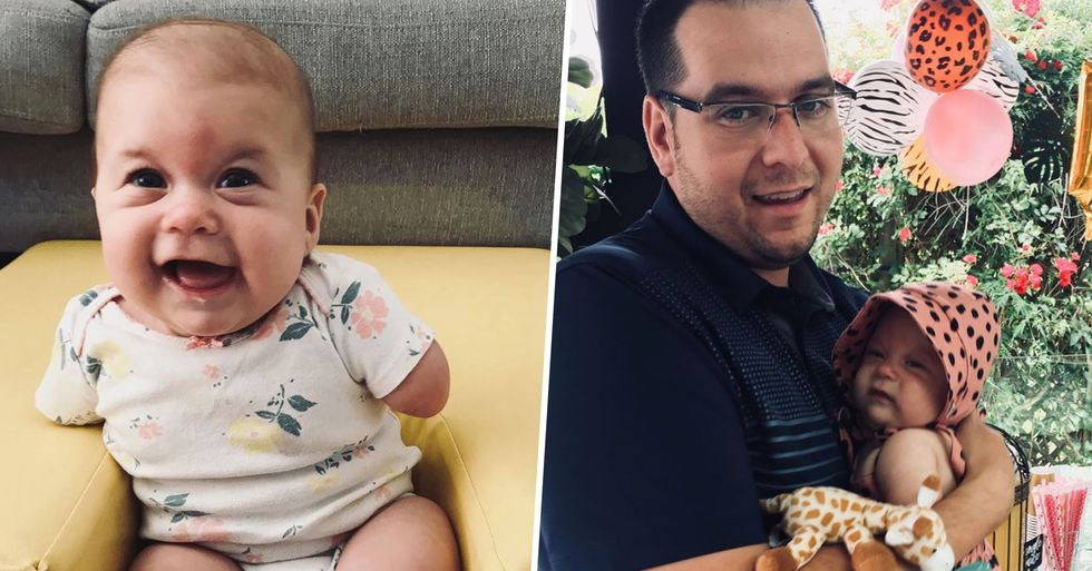 Husband's Reaction To Finding Out His Baby Girl Has No Arms Puts Doctors To Shame