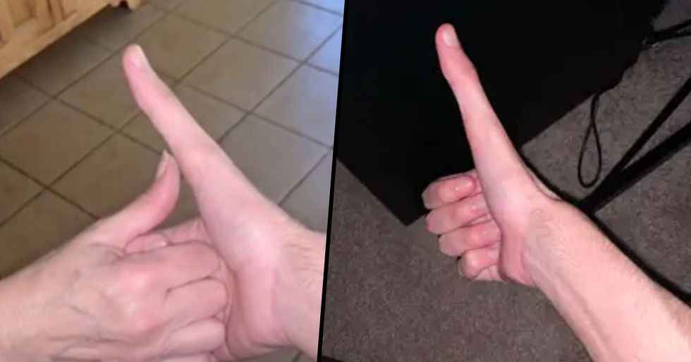 Guy's Super Long Thumb Has Gone Viral and It's 100% Real