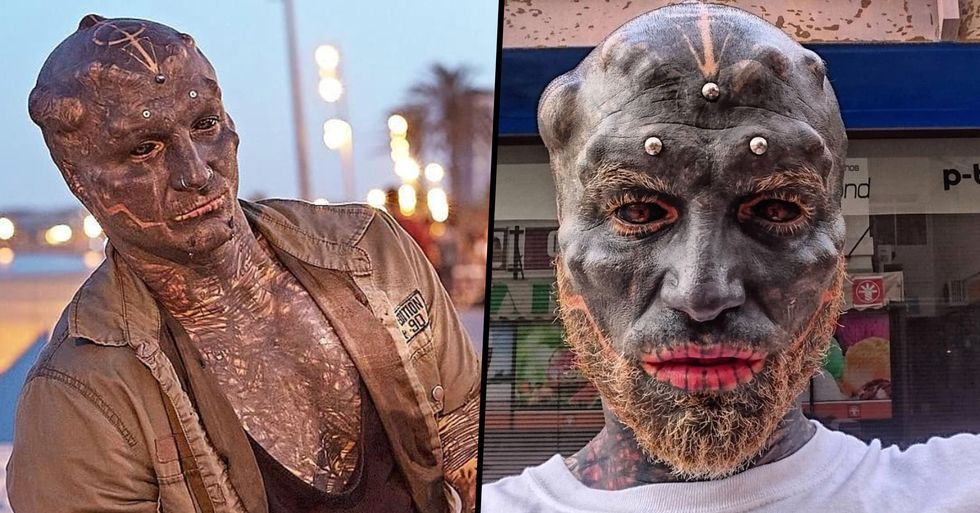 Man Who Has Transformed Himself Into 'Black Alien' Has Nose Removed