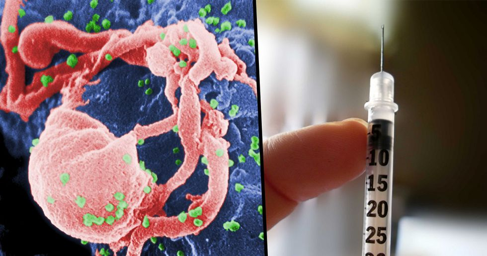 Man Becomes Second Patient in History to Be Cured of AIDS Virus