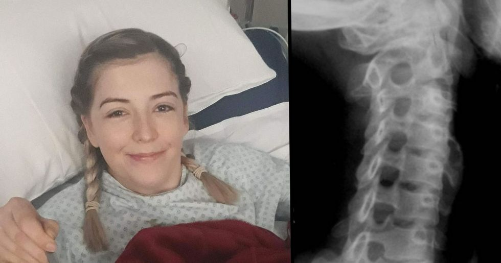 23-Year-Old Partially Paralyzed After Cracking Her Neck the Wrong Way