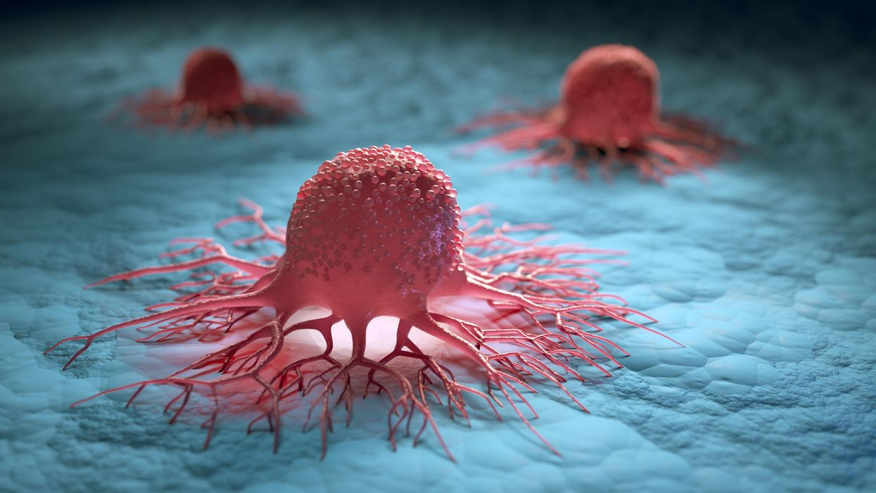 Cancer cells hibernate to survive chemotherapy, finds study
