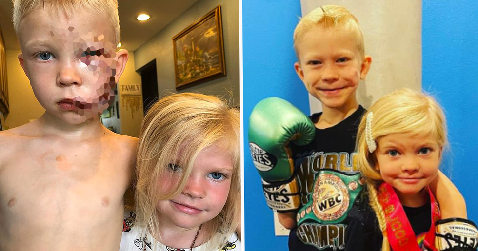 Boy Who Was Mauled While Saving His Sister From Dog Attack Reveals Incredible Transformation