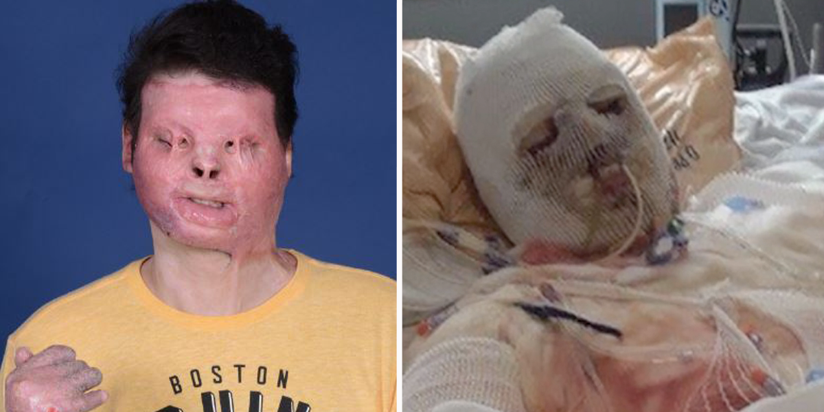World's First Face and Hands Transplant Gives Man a New Chance at Life