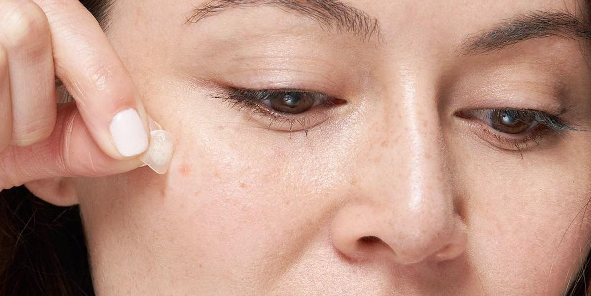 The Best Acne Pimple Patches