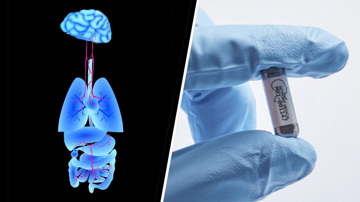 How tiny bioelectronic implants may someday replace pharmaceutical drugs