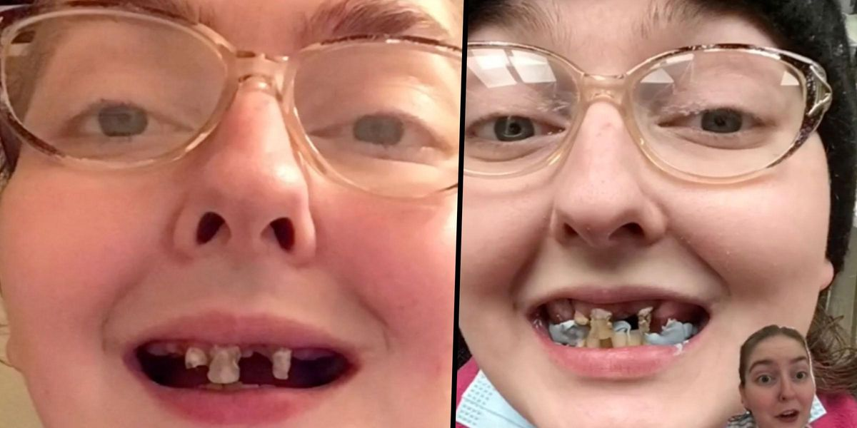 Mom Who Lost All Her Top Teeth Issues Dental Warning